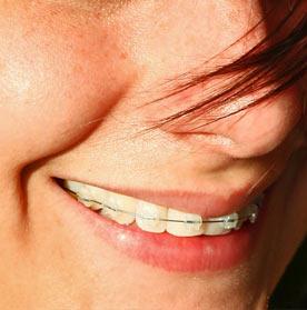 Ortodoncie – rovnátka